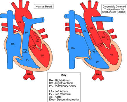 lTGA_Hearts