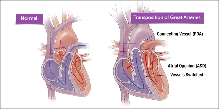 Transpositionofthegreatarteries